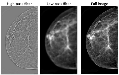 Mammograms with various levels of filtering