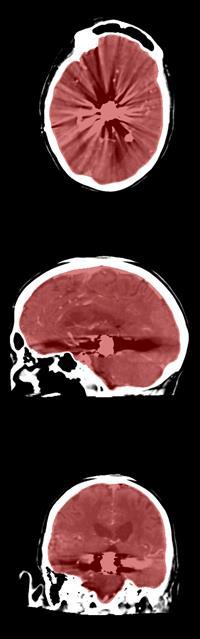 Axial, sagittal, and coronal CT views of cranial cavity segmentation