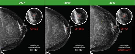 Early breast cancer was flagged by the CAD software