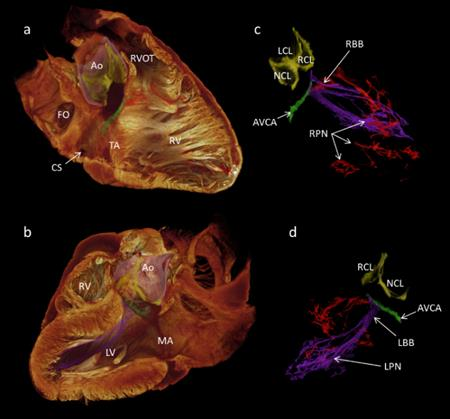 3D visualization of the cardiac conduction system