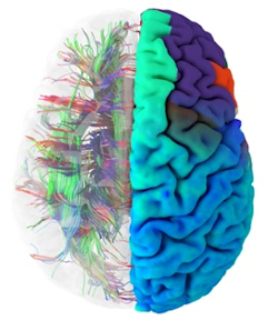 Image of health brain connectome