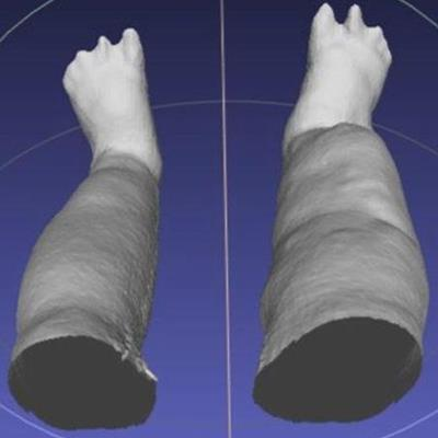 Portable gaming sensor enables 3D scans of elephantiasis
