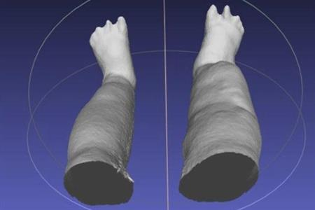 Image showing 3D reconstruction of swollen legs