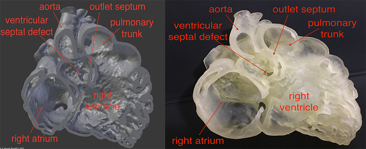 Virtual heart model and 3D-printed heart