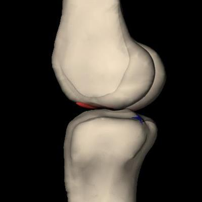 3D knee model reveals ACL tear same in men, women