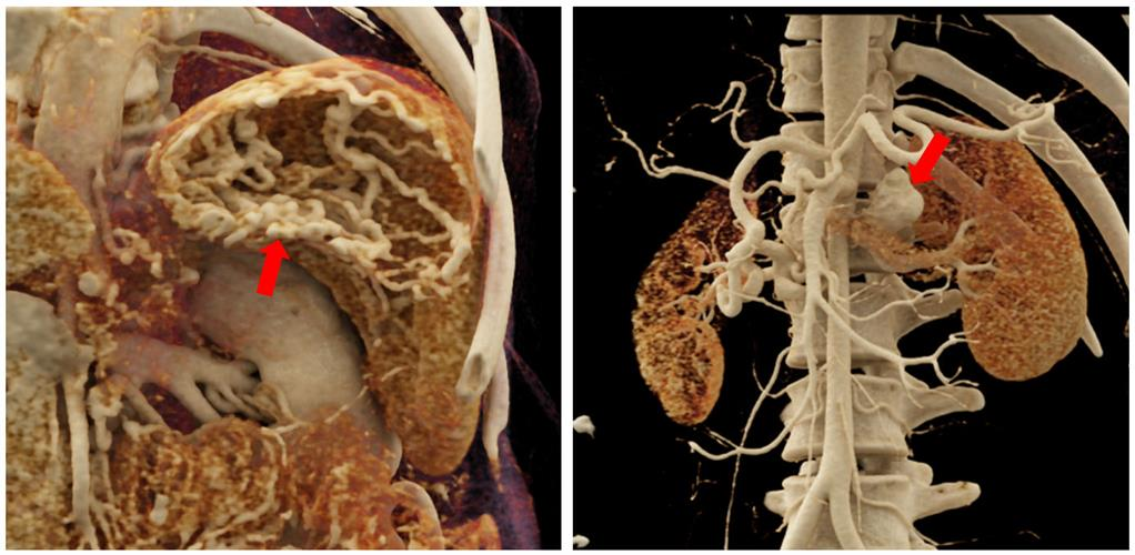 Cinematically rendered images of a stomach with extensive varices and a relatively large saccular aneurysm