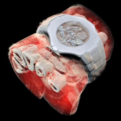 New Zealand start-up scans 1st humans with spectral CT