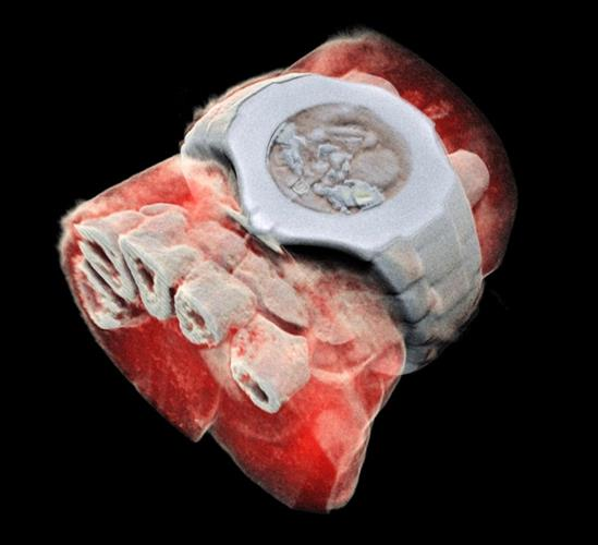 3D image of the wrist acquired with the Mars spectral CT scanner