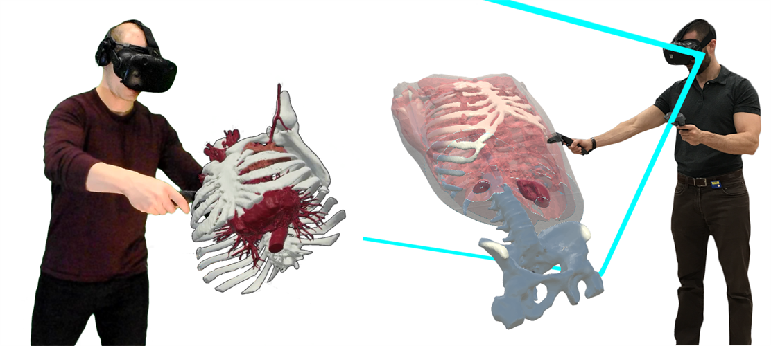 Users interact with medical datasets in 3D via virtual reality