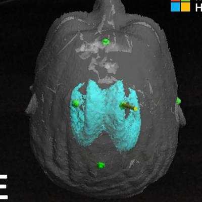 Augmented reality heightens accuracy of brain procedure