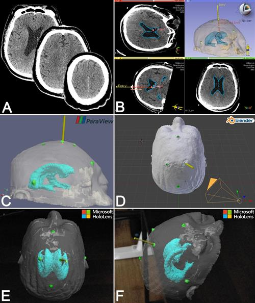 Visualization and presurgical planning on CT scans, 3D virtual models, and augmented reality holograms