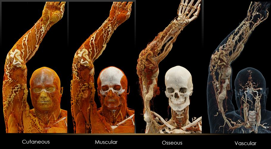 Cinematically rendered images based on patient CT scans viewed using different presets for skin, muscle, bone, and vasculature