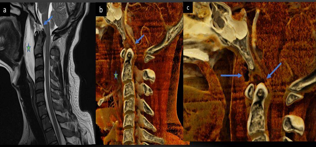 Comparable views of a ruptured tectorial and anterior atlanto-occipital membrane seen on a spine MRI scan and a cinematically rendered spine CT scan