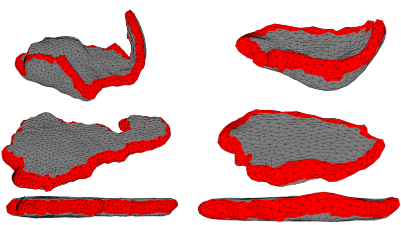 A 3D placenta model based on MRI scans in an in utero position (top) and after flattening (bottom)