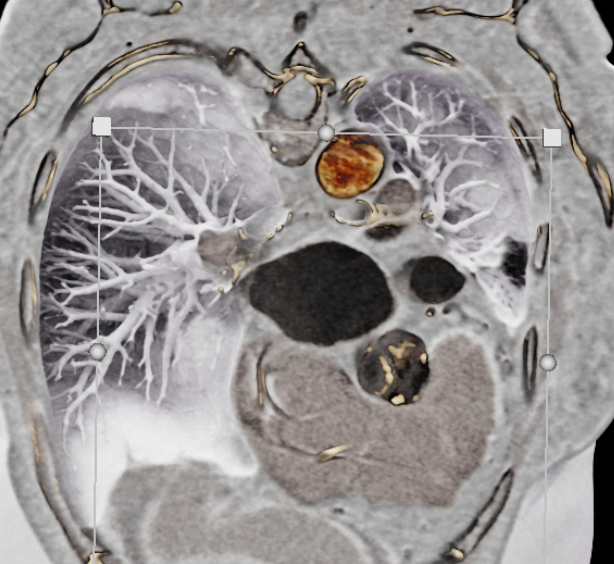 Black-blood CT displaying a calcified aortic valve
