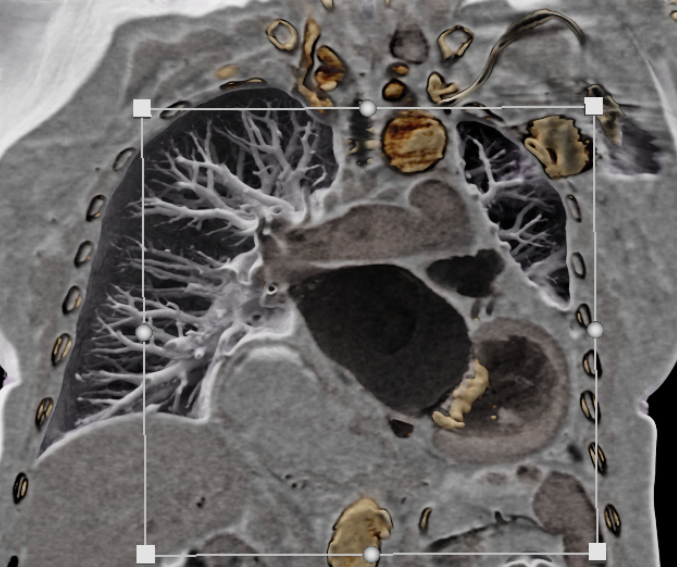 Black-blood CT showing a calcified mitral annulus