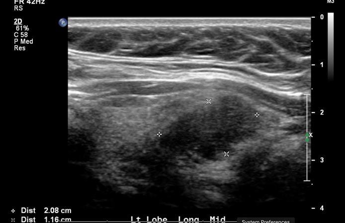 Quantitative Analysis May Help Classify Thyroid Nodules