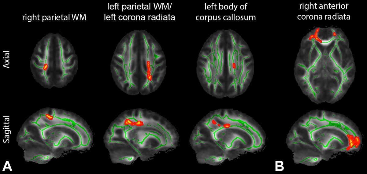 TBSS analysis of multishell diffusion MRI