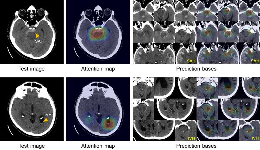True-positive test CT images with subarachnoid hemorrhage and intraventricular hemorrhage along with the corresponding attention maps generated by the ICH detection deep-learning system