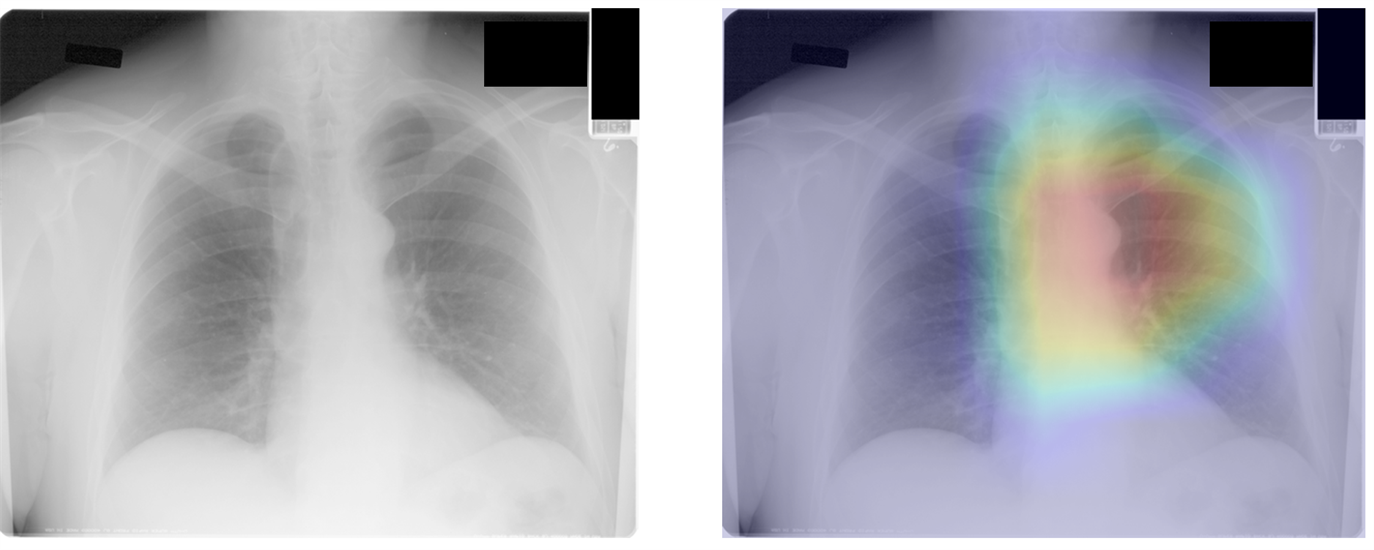 Gradient-weighted class activation maps can localize anatomy contributing to CXR-Age estimates. In this 55-year old man, the CXR-Age model focuses on the aortic knob.