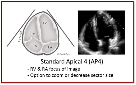 Standard apical 4