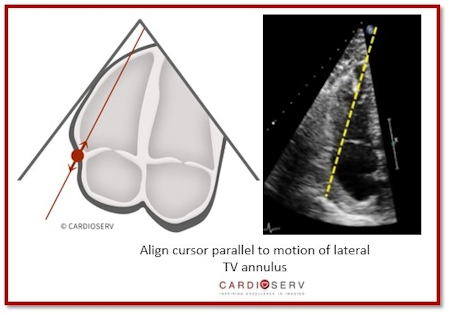 Align cursor parallel to motion of lateral TV annulus