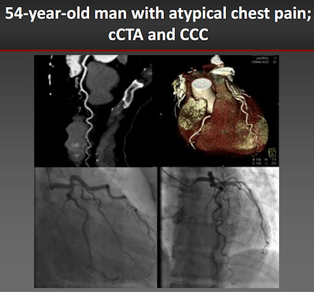 CCTA shows clear arteries