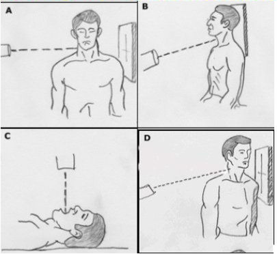 Positioning for cervical spine views