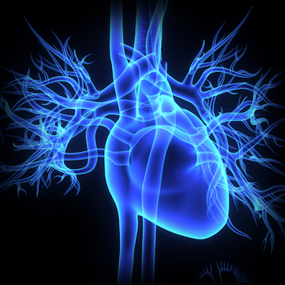 AI can help predict heart attacks, death on CCTA