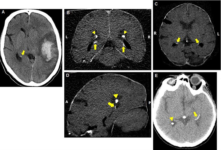 Axial reconstructed brain CT scans of patients with hippocampal calcifications