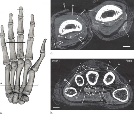 Volume-rendered reconstruction of the phase-contrast CT scan of a mummified hand