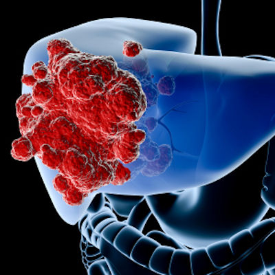 CT radiomics improves management of bile duct cancer