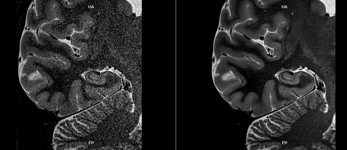 MR images acquired on a 3-tesla Galan scanner before and after data reconstruction with Canon