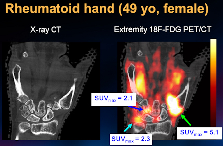 Hand of a female patient with rheumatoid arthritis