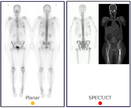 Scintigraphy and SPECT/CT