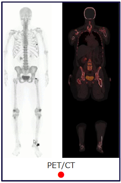 PET/CT for bone metastases