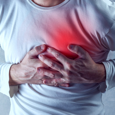 Heart societies endorse CT CAC for risk assessment