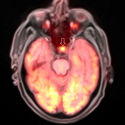PET/MRI brain scan