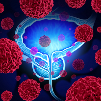 TRUS bests MRI for identifying prostate cancer