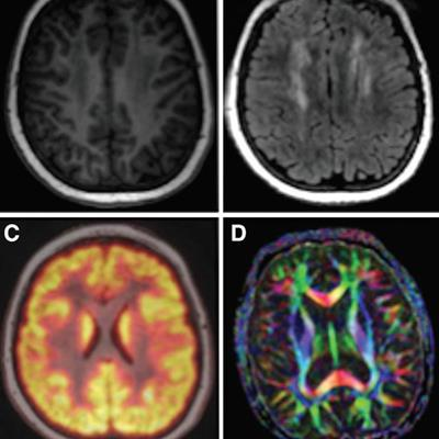 Shorter PET/MRI scans feasible for pediatric cancer patients