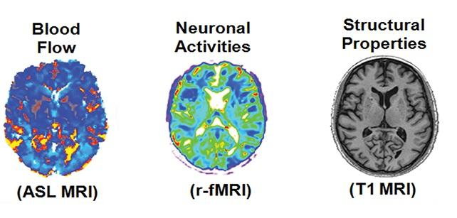 Multiple modes of PET and MRI were used to create personalized brain fingerprints