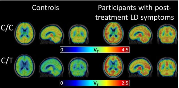 PET brain scans show elevated levels of the inflammation marker in participants with post-treatment Lyme disease syndrome