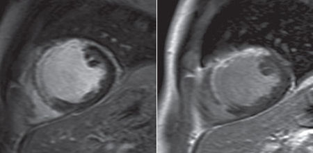 Gadopentetate and gadobutrol cardiac MRI