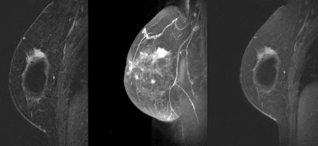 Mri Adds To Cancer Detection In Women With Breast Implants