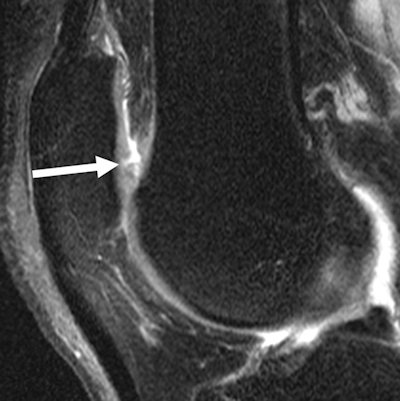 MRI of knee shows development of fissure