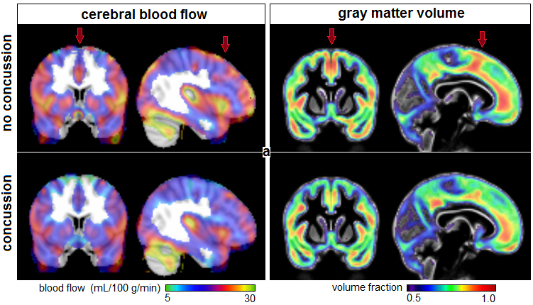 Brain MR images of cerebral blood flow and gray-matter volume fraction for athletes with and without a history of concussion