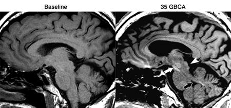 MRI of man with glioblastoma after contrast