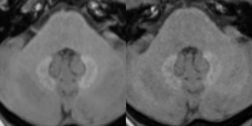 Unenhanced T1-weighted MR images at 3 tesla