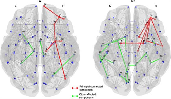 Structural connections in patients with Parkinson