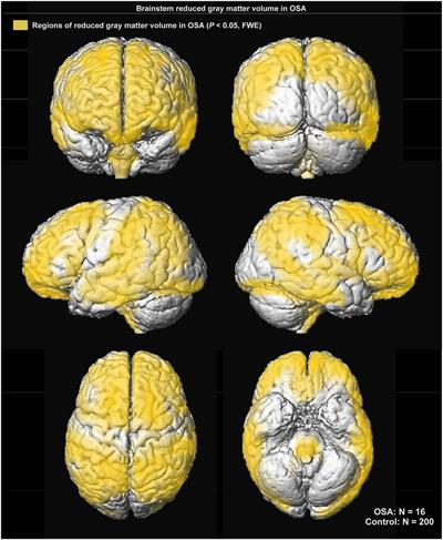Images show regions of reduced grey-matter volume in subjects with sleep apnea
